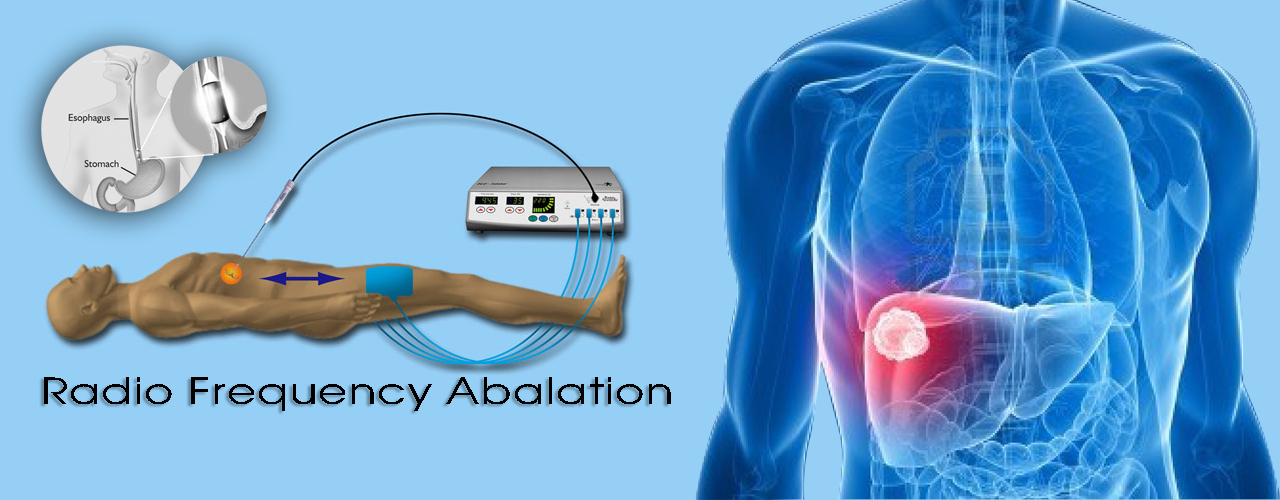 head and neck cancer surgeon in Ahmedabad